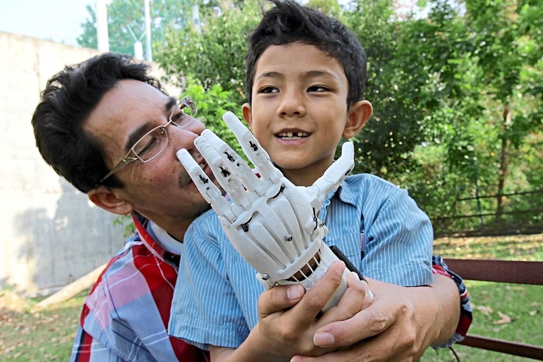 Sujana helping a child wear a mechanical limb using his 3d printer.