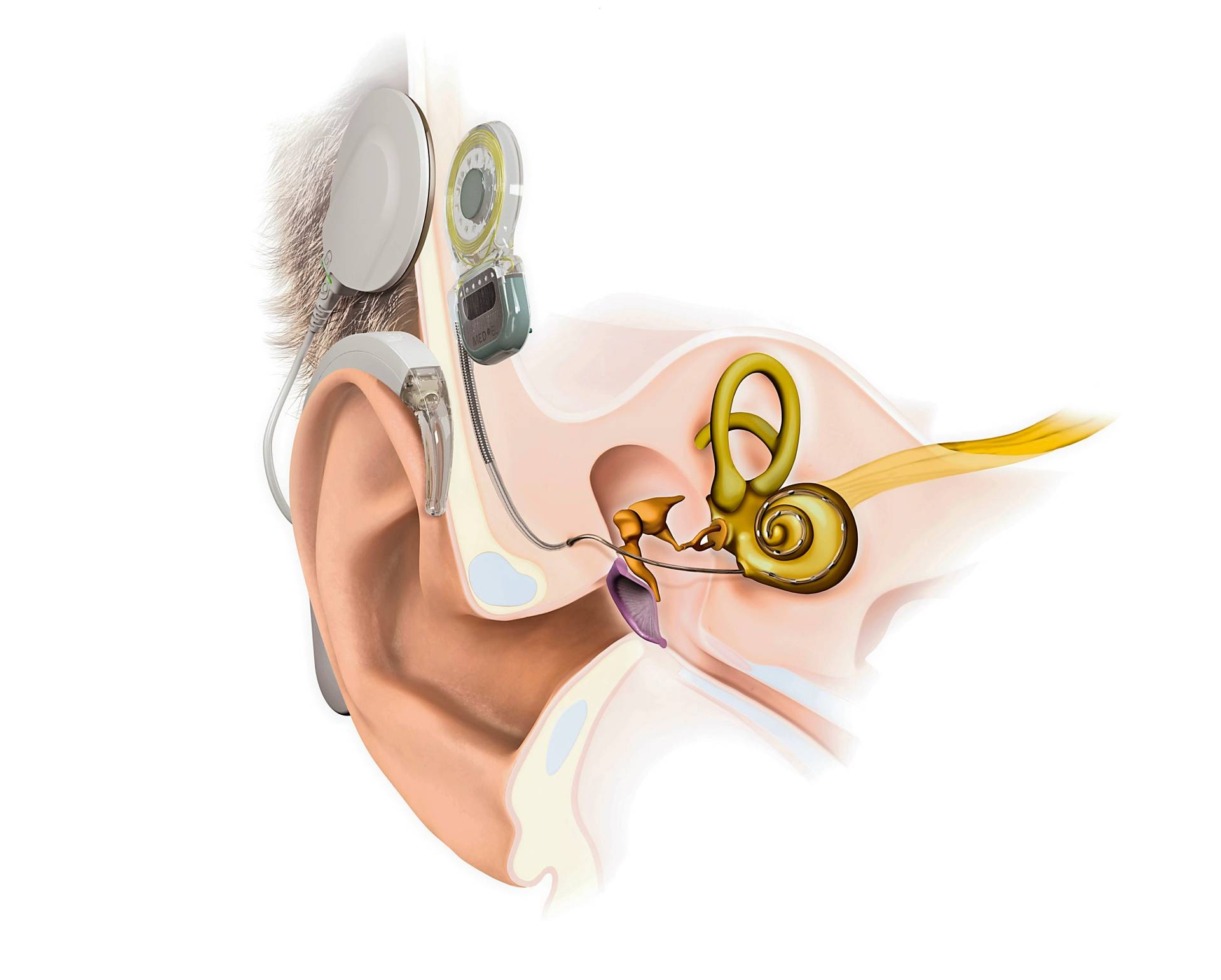 Cochlear implants are one of the ways to restore hearing function to those with SSD. — Med-El