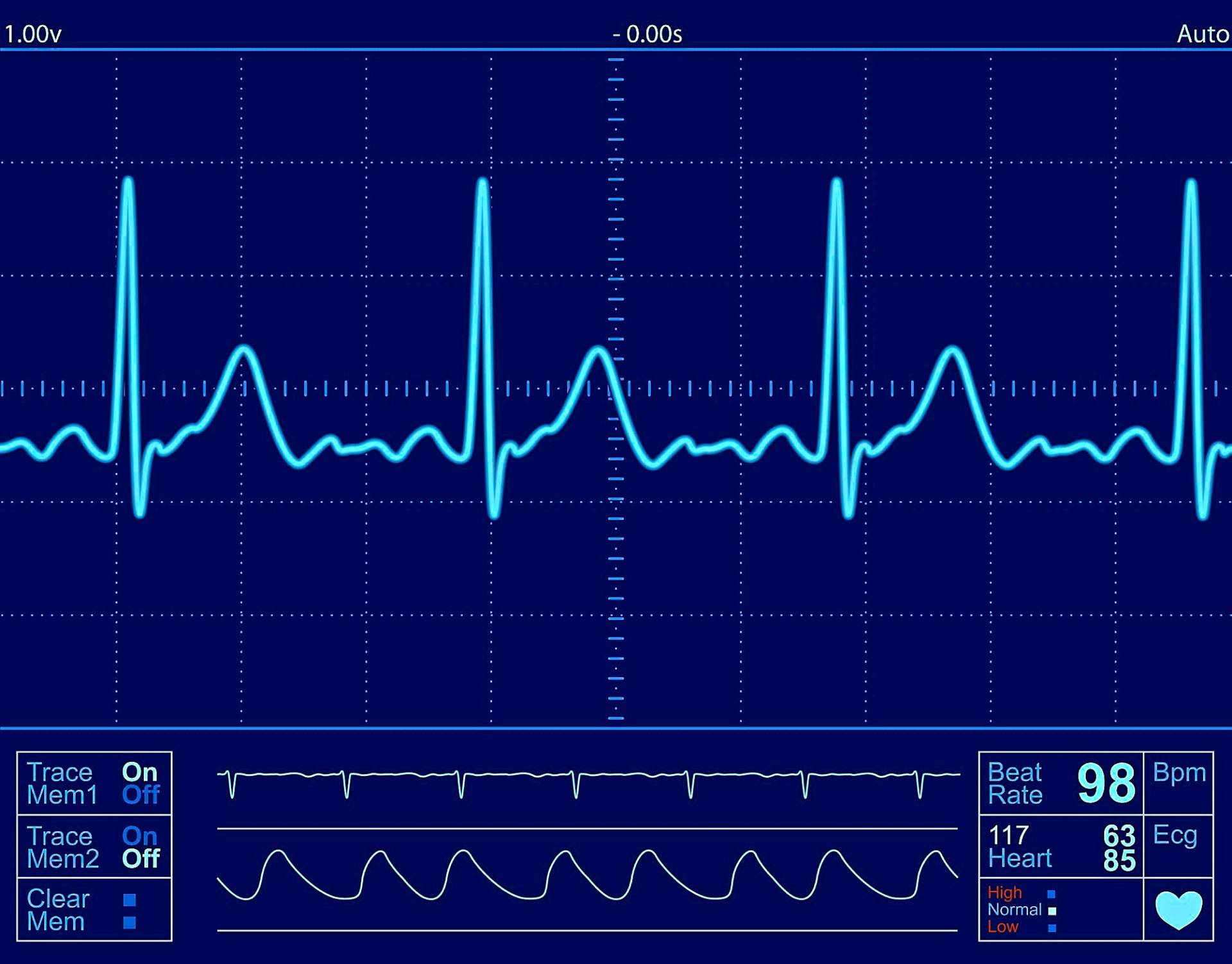 A cardiac screening usually includes an ECG to check your heart's rate, rhythm and structure. — AFP