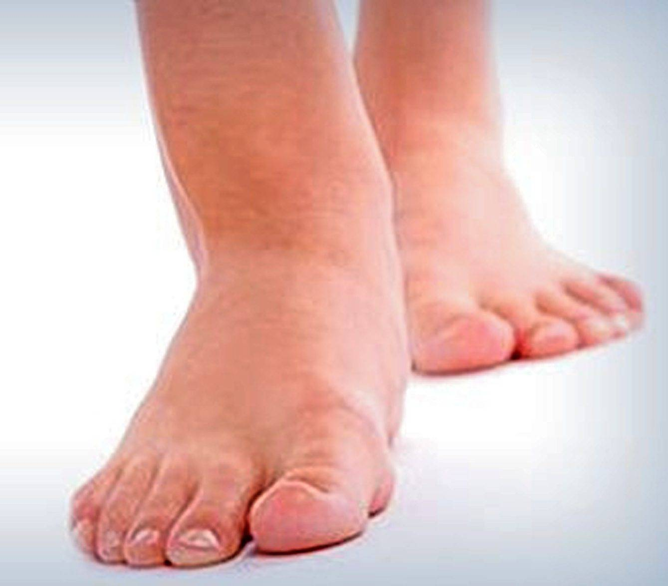 Swollen feet, ankles or legs could be a sign of heart failure.