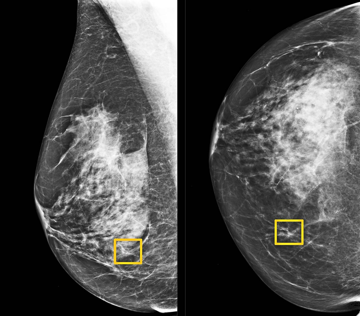 A yellow box indicates where an AI system found cancer hiding inside breast tissue in this undated photo released by Northwestern University in Chicago, United States. New technologies will certainly continue to make an impact on healthcare. — Reuters