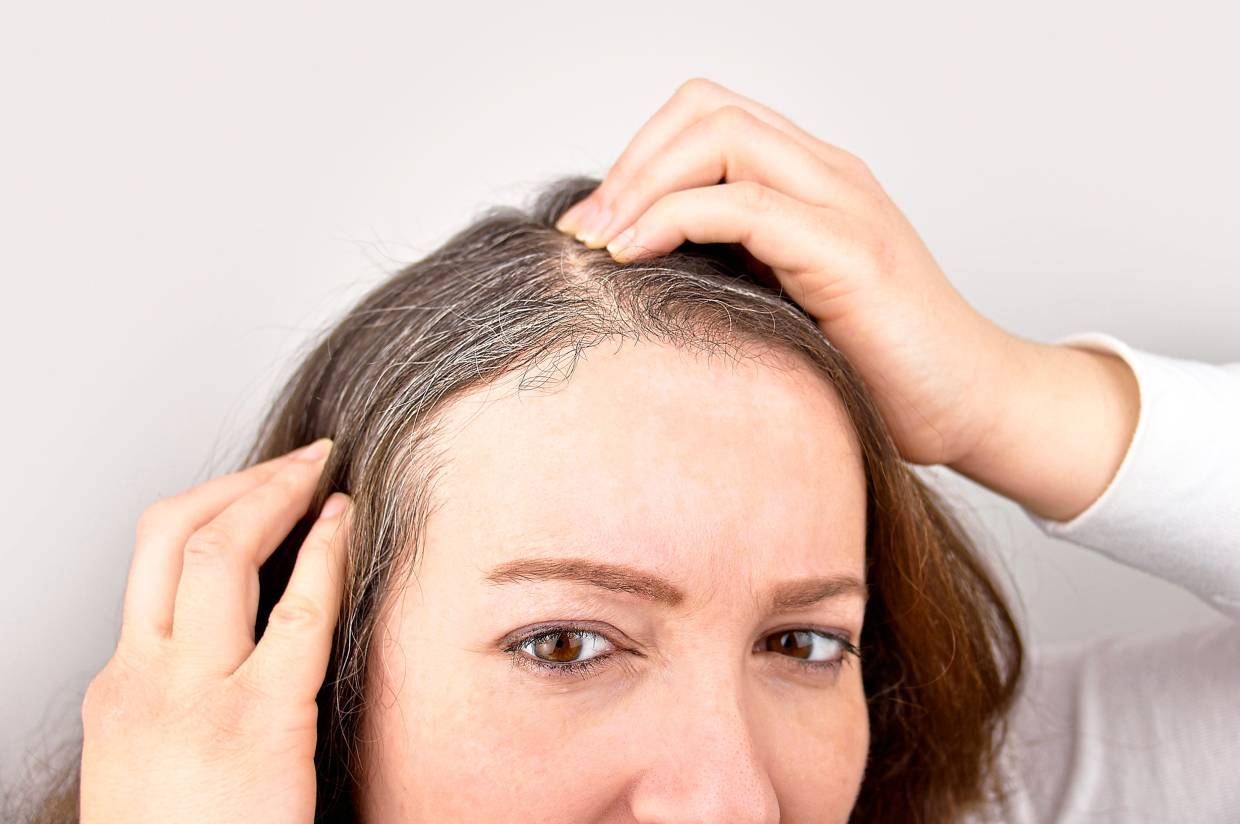 What makes your hair turn white faster | The Star