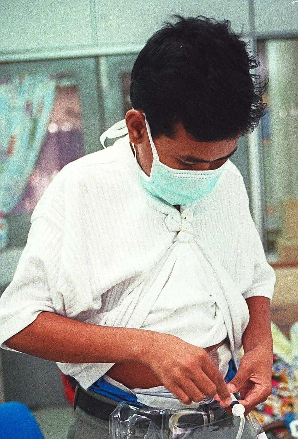 Peritoneal dialysis, as seen in this filepic, allows for more flexibility in terms of time and diet than haemodialysis.