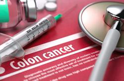 A colonoscopy can save you from colorectal cancer