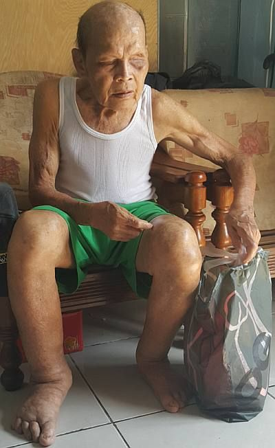 Oyo Emang who is blind and in his 70s is one of the many disabled needing urgent aid during this Covid-19 pandenic period. - Pic by Stephen Then