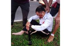 Cop hit by out-of-control car while directing traffic on Jalan Kuching