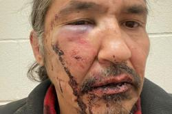Indigenous chief says Canadian police beat him over expired licence plate