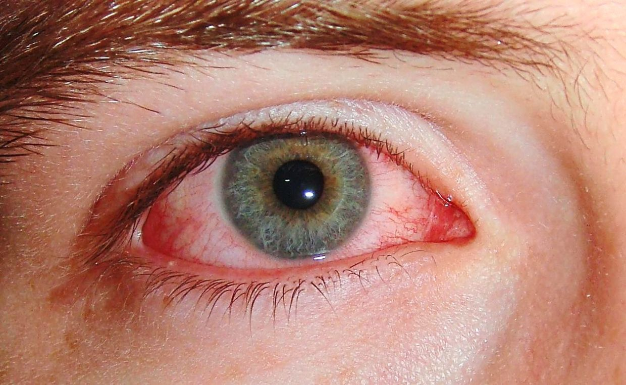Although conjunctivitis or pink eye is a very rare symptom of Covid-19, it can sometimes be the only symptom a patient has. — Wikimedia Commons