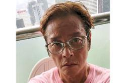 Singer Tam's sunken face on his post worries fans