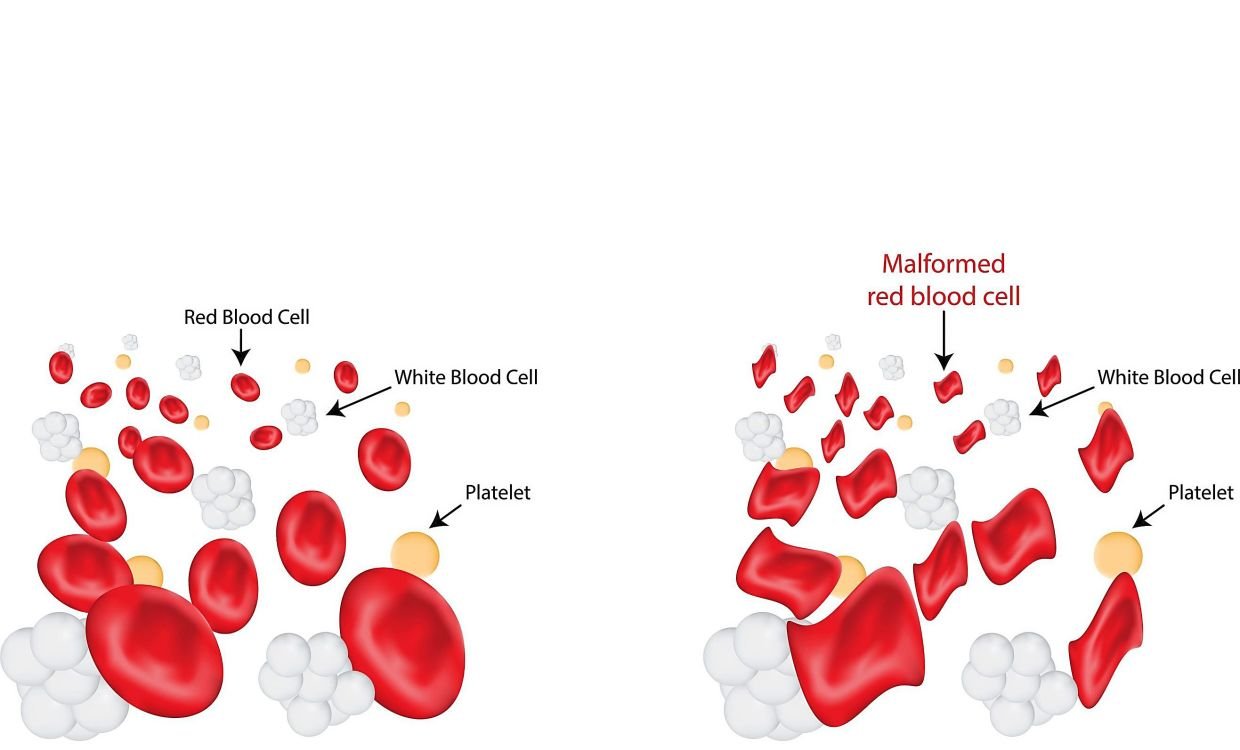 An inherited gene mutation causes a reduction or lack of certain globin chains needed to form haemoglobin in thalassaemia patients, resulting in a malformed red blood cell (right). — 123rf.com