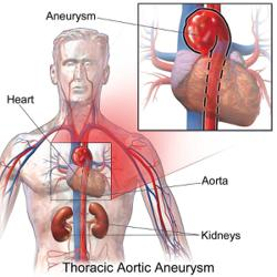 A ruptured aneurysm could lead to sudden death