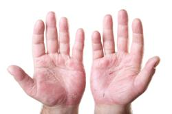 The 5 'I's Of Atopic Dermatitis Treatment