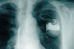Do smartphones still need to be kept far away from pacemakers?