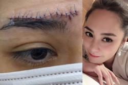 HK star Gillian Chung bravely shows off 6cm facial scar