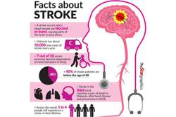 Better access for stroke patients