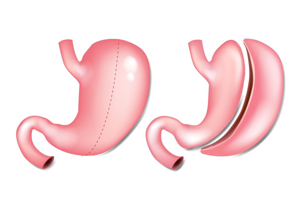 Sleeve gastrectomy is a procedure where 80% of the stomach would be cut.