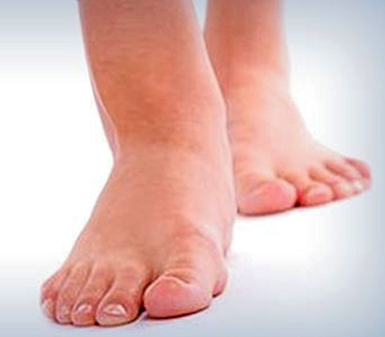 Swollen feet and legs due to congestion are a common sign of heart failure. — Filepic