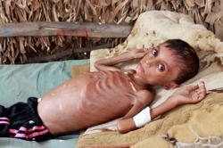 Yemeni boy fights malnutrition as hunger stalks nation's children