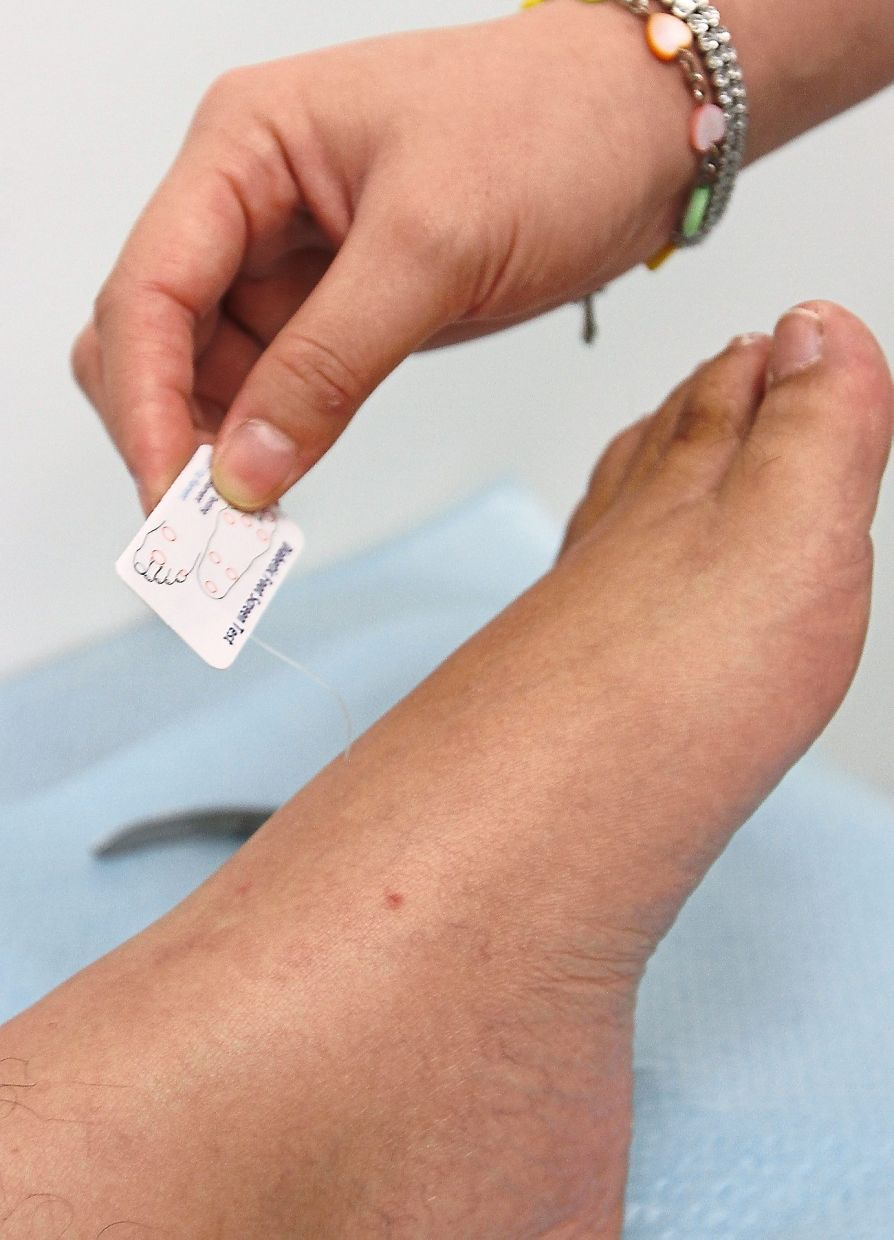 One of the first symptoms of diabetic neuropathy is reduced sensation due to the damaged nerves.