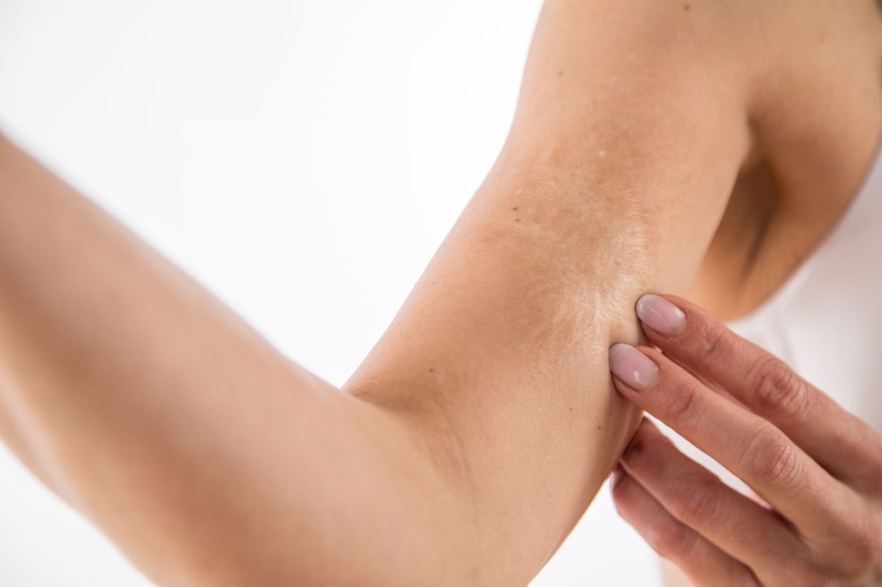 The type of scar that forms determines what kind of treatment can be used to remove it. Photo: dpa