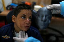 Gaza burn victims get 3D-printer face masks made close to home