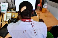 Uganda security personnel beat journalists covering rights abuse petition