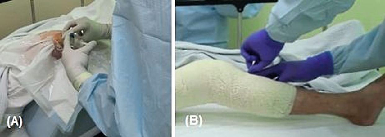 The radionuclide – in this case, yttrium-90 – is injected into the right knee joint during radiosynovectomy in (A), while the injected joint is immobilised in (B) for 48 hours to reduce unwanted distribution of the radionuclide to elsewhere in the body. — Dr ALEX KHOO CHEEN HOE