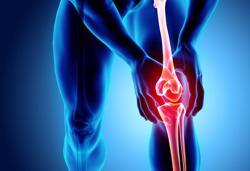 This procedure is often overlooked when treating arthritis