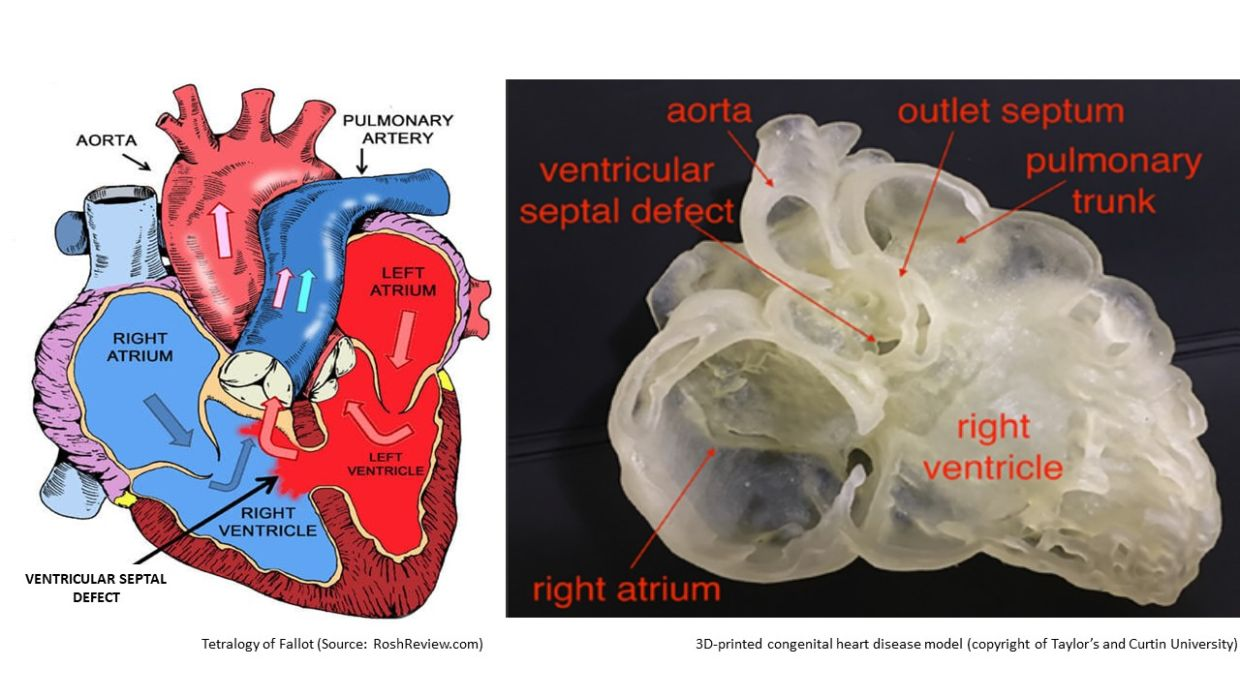 School of Medicine lecturers and students printed a 3D model replicating patient-specific hearts to improve visual techniques on complex heart defects known as congenital heart disease (CHD).