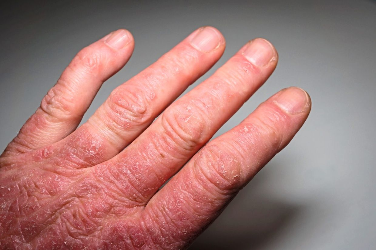 The inflammation caused by psoriatic arthritis often leads to anatomical changes that result in deformity.
