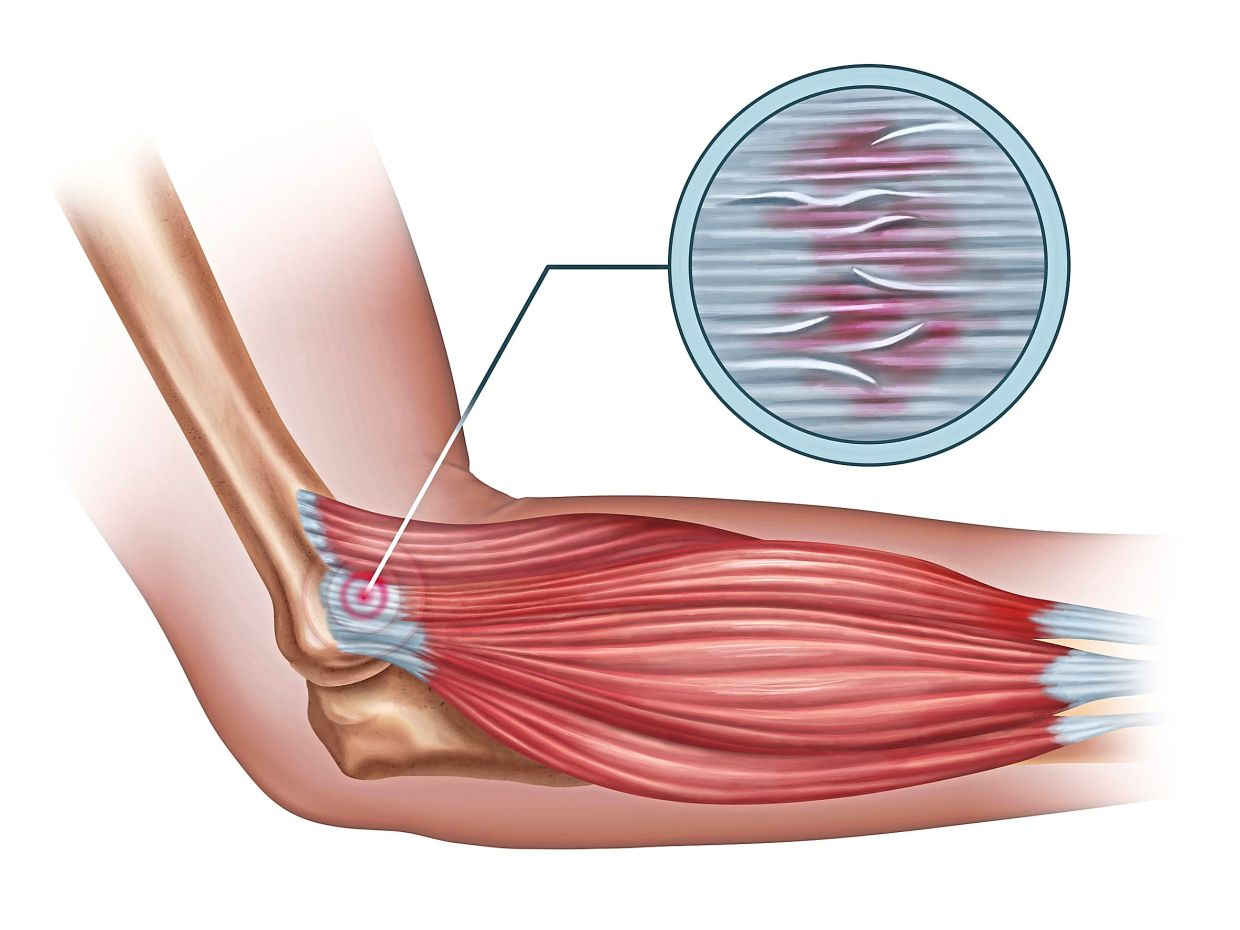 An illustration of tennis elbow (known medically as lateral epicondylitis) showing inflammation of a tendon at the outer elbow. — 123rf.com