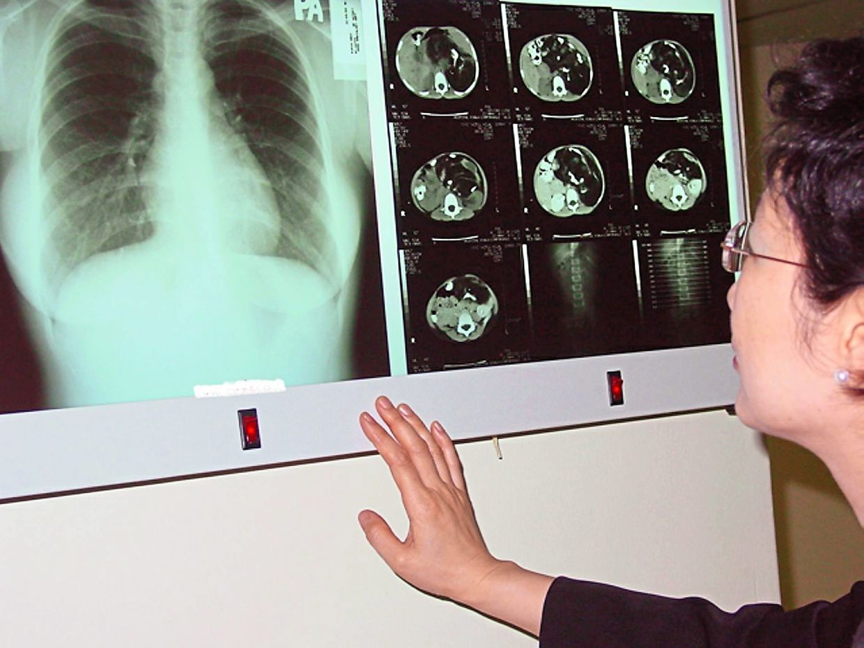 Radiologists, who specialise in diagnosing injuries and diseases through medical imaging, fall into the category of supportive specialist. — Filepic