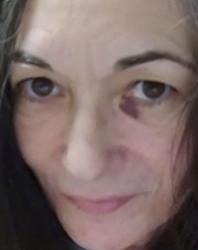Ghislaine Maxwell shown with 'black eye' in photo -lawyer