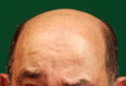 Of hair loss and male libido