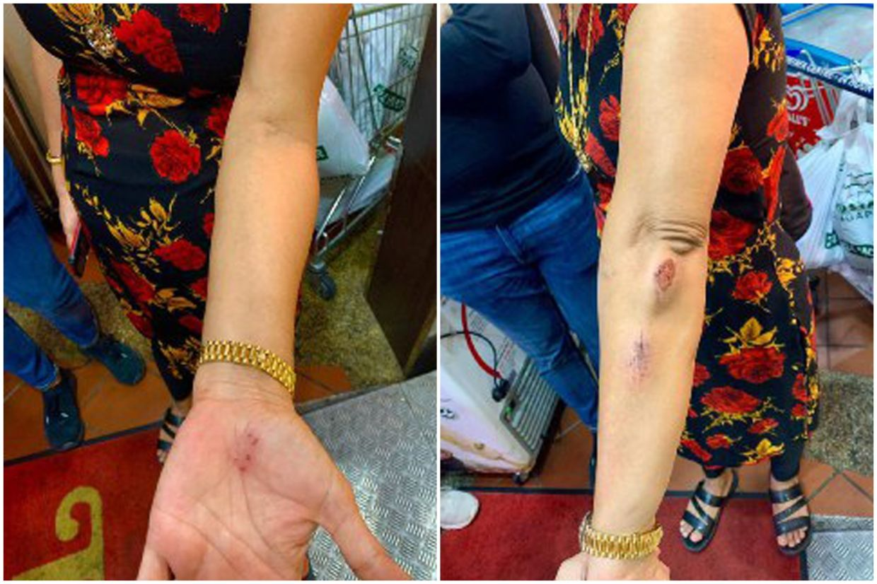 Madam Hindocha Nita Vishnubhai suffered scratches on her arms and hands after she was attacked while brisk walking on May 7, 2021. - Courtesy of Madam Hindocha via The Straits Times/ANN