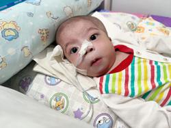 Baby with congenital DNA problems needs funds for medical expenses