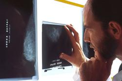 Swollen lymph nodes after Covid vaccination could be mistaken for breast cancer