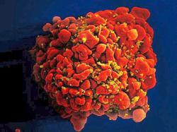 No cure in sight 40 years after AIDS was first identified