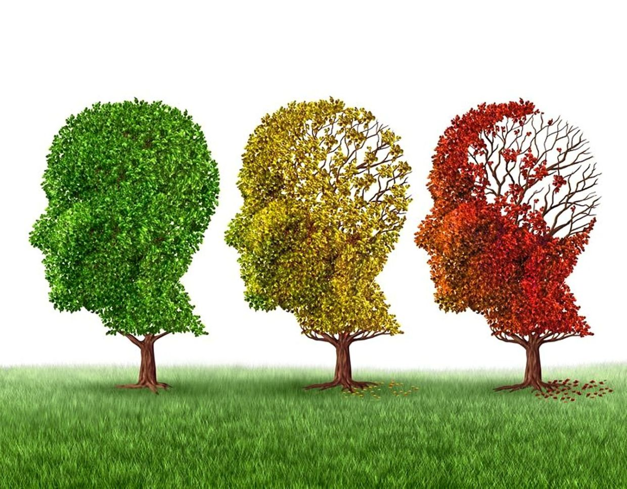 Alzheimer's is a degenerative disease of the brain that causes impaired functionality and memory loss. Photo: 123rf.com