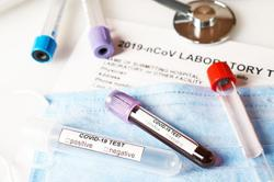 Brunei records four new imported Covid-19 cases