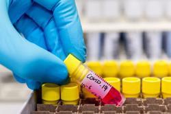 Covid-19: Shah Alam MP Khalid Samad tests negative after PCR test