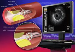 Using ultrasound to see inside the heart's arteries